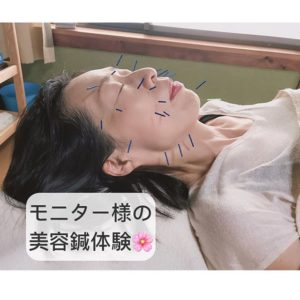 You are currently viewing モニターさまの美容鍼体験