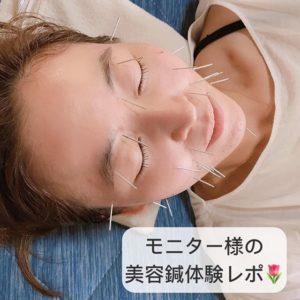 モニターさまの美容鍼体験3