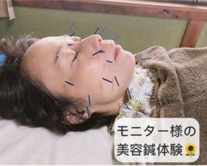 モニターさまの美容鍼体験2