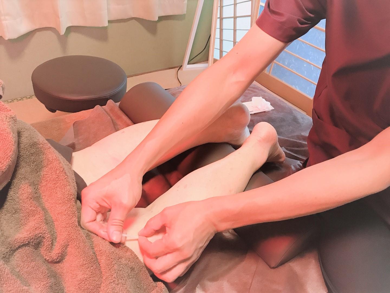 身体の鍼(浮腫み、腰痛)