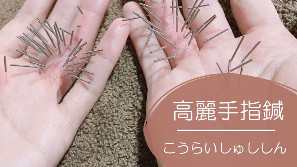 高麗手指鍼、手の鍼治療