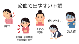 Read more about the article 【症例】瘀血のサインと身体の不調